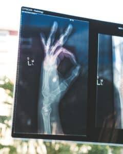 Online Associates in Radiologic Technology